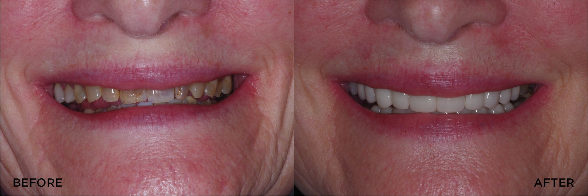 Cosmetic Makeover Veneers Crowns.