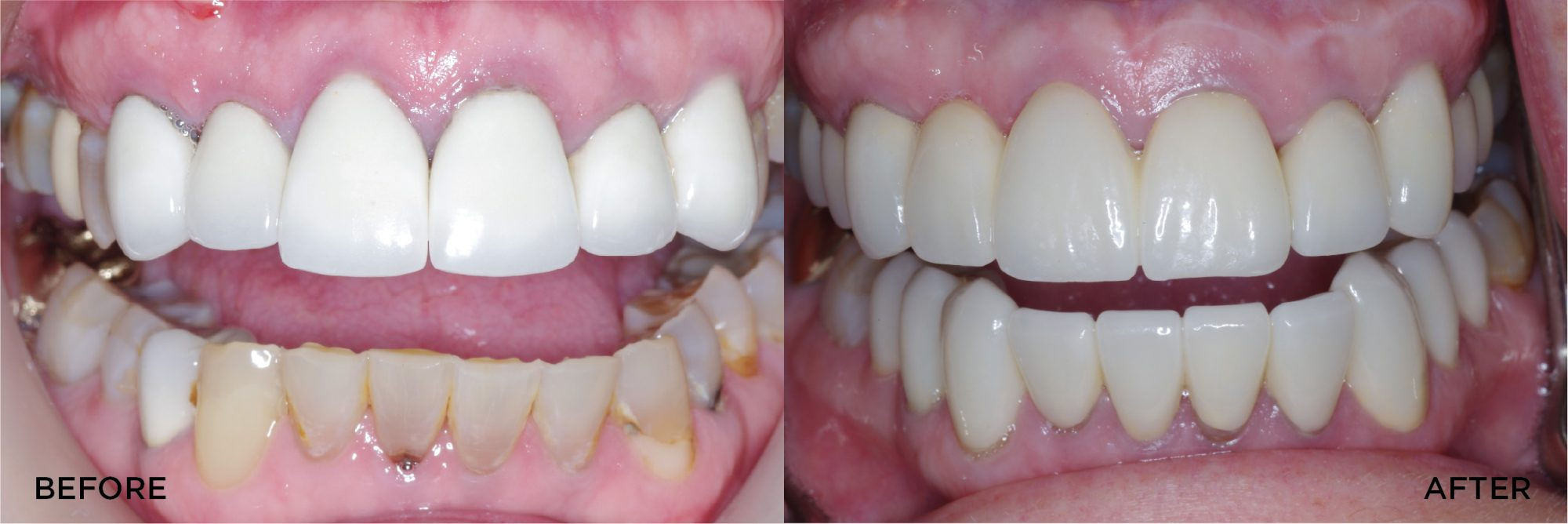 Full Mouth Rehab with Crowns Veneers